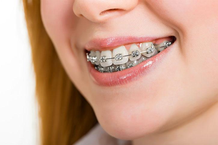 Ortodontik Diş Teli Çeşitleri Nelerdir?