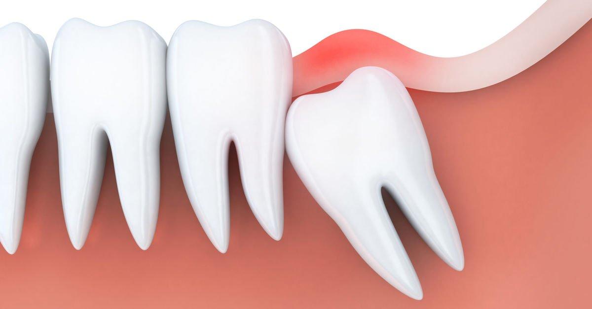 Yirmilik Diş hakkında merak ettikleriniz