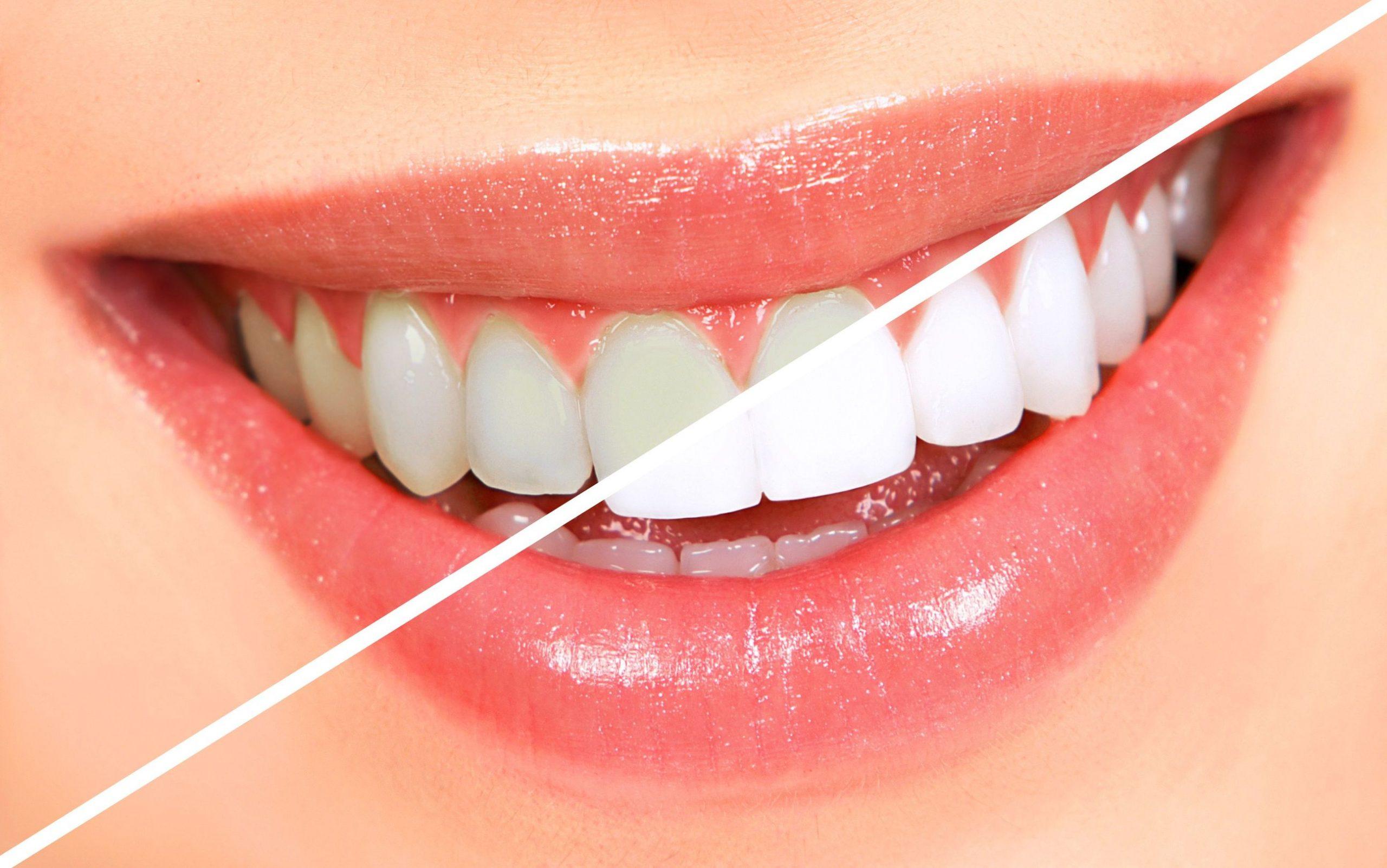 Diş beyazlatma sonrasında nelere dikkat etmeliyiz?