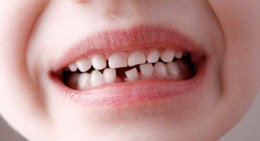 Çocuklarda Çarpık Diş Tedavisi