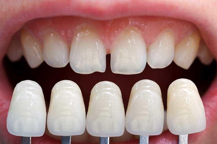 Lamine diş (porselen kaplama) nedir?