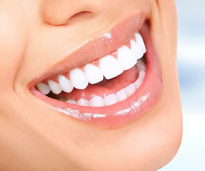 Diş dolgusu nedir? Çeşitleri nelerdir?