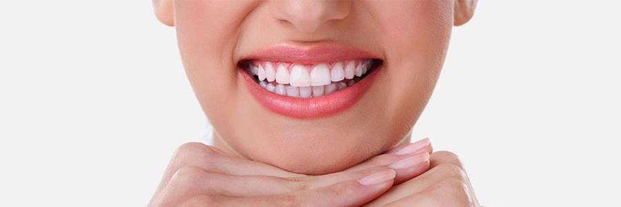 Gummy Smile nedir?