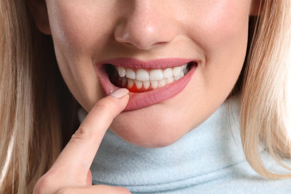 Diş eti kanaması neden olur? Nasıl tedavi edilmelidir?